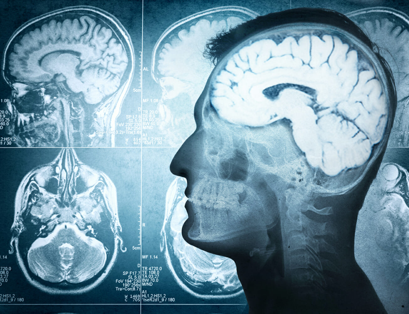 medical imaging of a brain that may be diseased from drug abuse